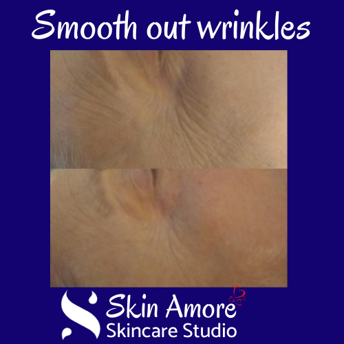 Smooth out wrinkles